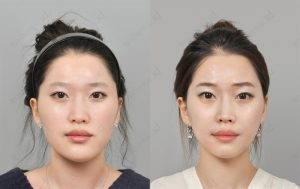 orthognathic-surgery-before-and-after-model1-front