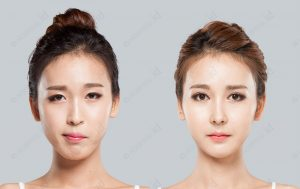 orthognathic-surgery-before-and-after-photograph-model3-front
