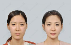orthognathic-surgery-before-and-after-pictures-model6-front