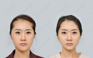 orthognathic-surgery-beforenafter-photograph-model5-front